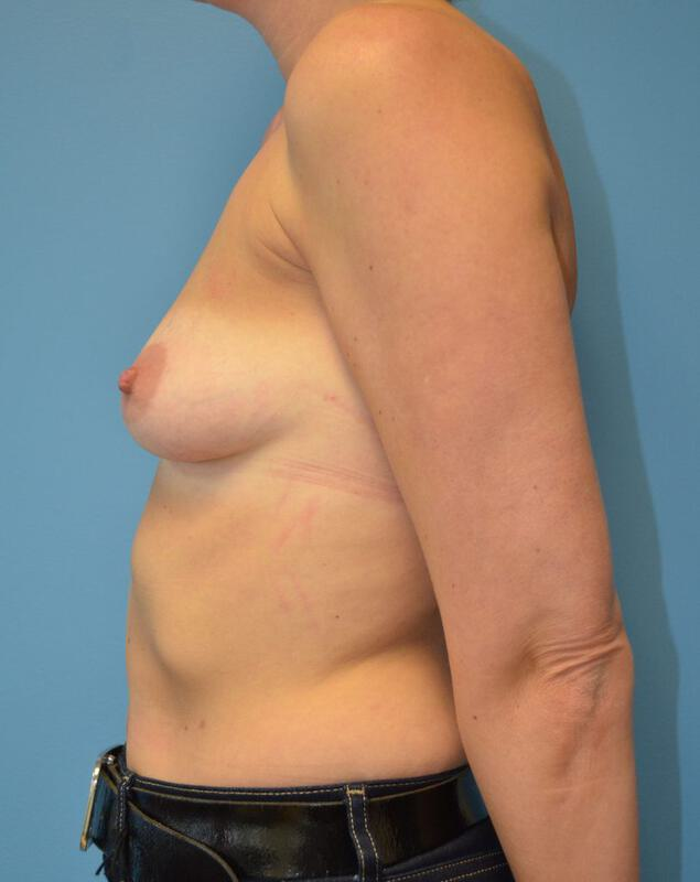 Breast Augmentation Before & After Image